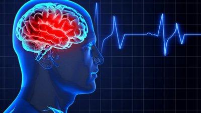 cervello dell uomo